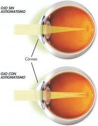 Cornea astigmastismo